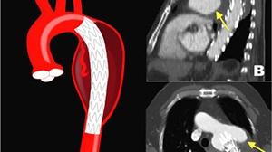 Novedades diagnóstico-terapéuticas en endofugas, talón de Aquiles de la reparación endovascular del AAA